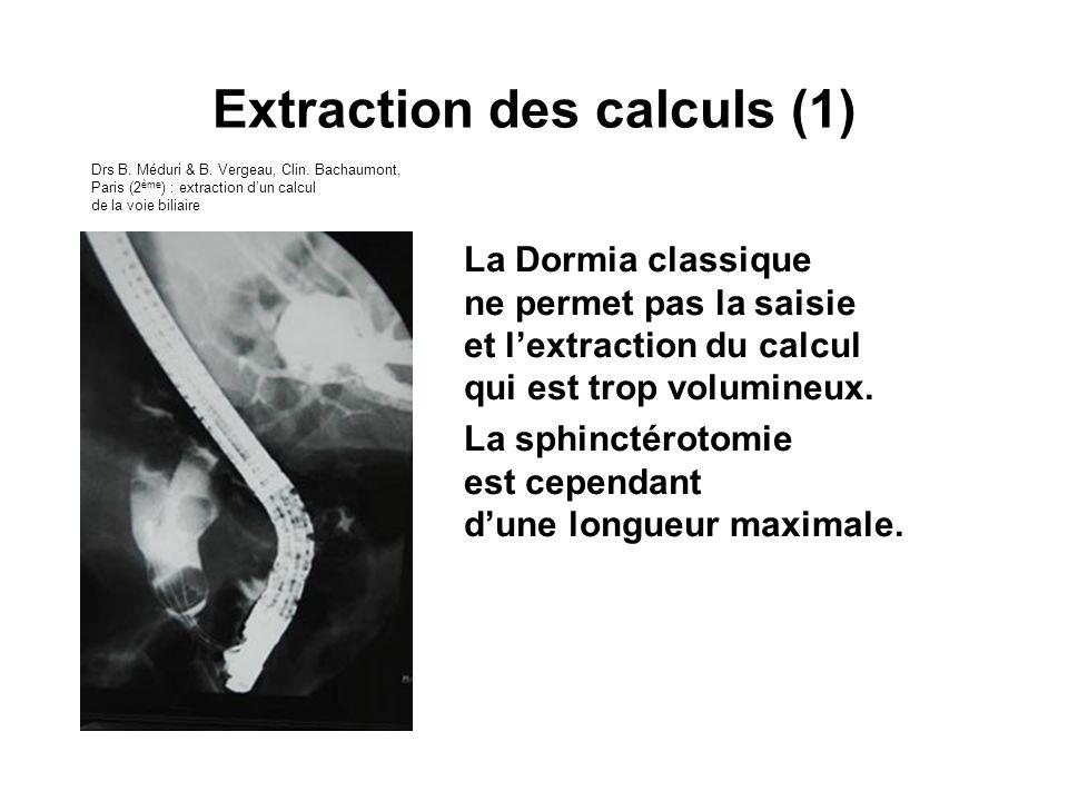 La Dormia classique ne permet pas la saisie et lextraction du calcul qui est trop volumineux. La sphinctérotomie est cependant dune longueur maximale.