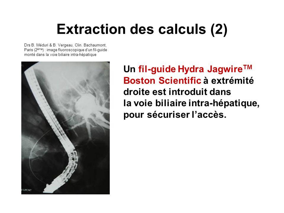 Un fil-guide Hydra Jagwire TM Boston Scientific à extrémité droite est introduit dans la voie biliaire intra-hépatique, pour sécuriser laccès. Extract