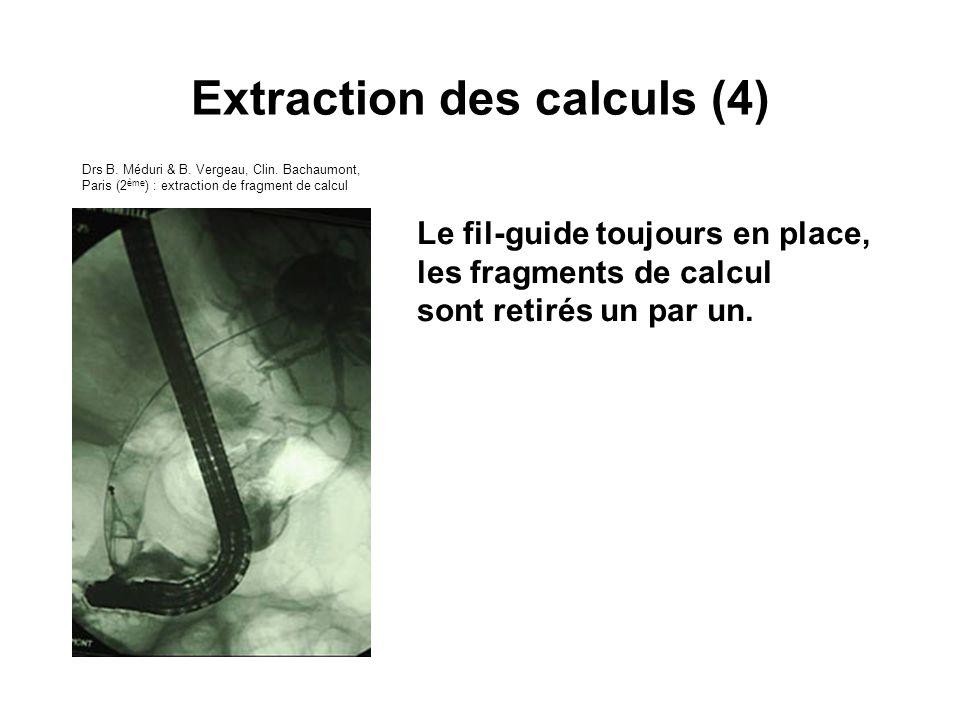 Le fil-guide toujours en place, les fragments de calcul sont retirés un par un. Extraction des calculs (4) Drs B. Méduri & B. Vergeau, Clin. Bachaumon