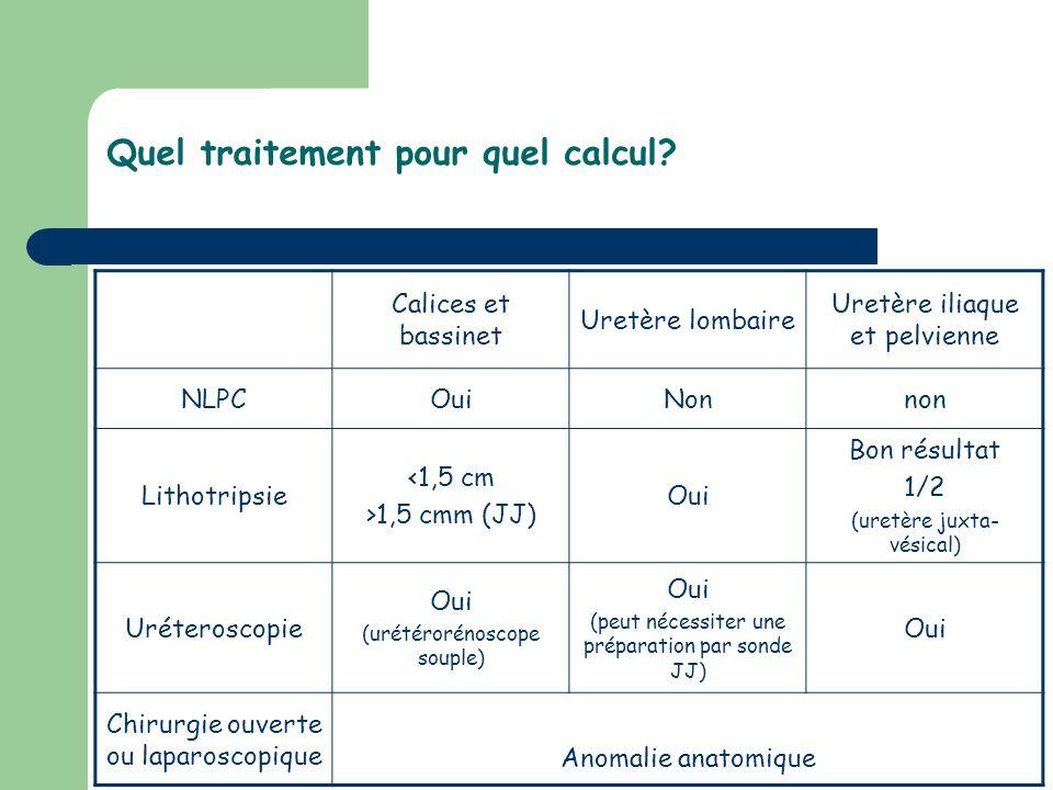Quel traitement pour quel calcul? Calices et bassinet Uretère lombaire Uretère iliaque et pelvienne NLPCOuiNonnon Lithotripsie <1,5 cm >1,5 cmm (JJ) O