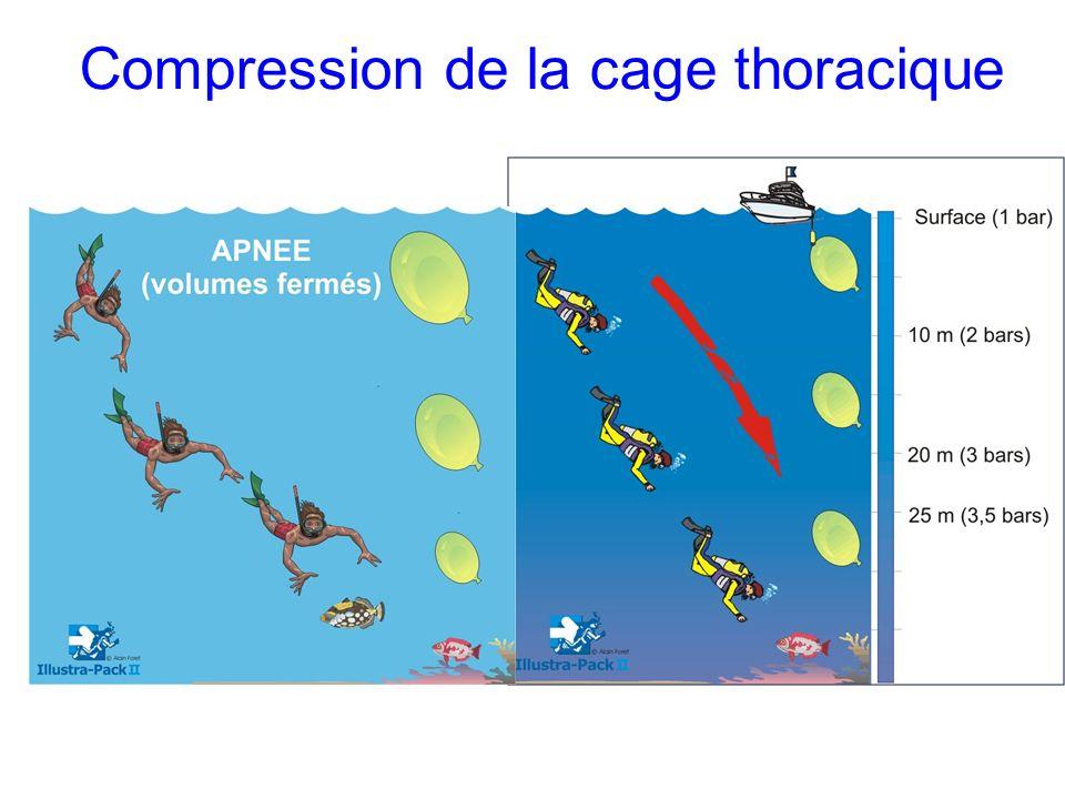 Compression de la cage thoracique