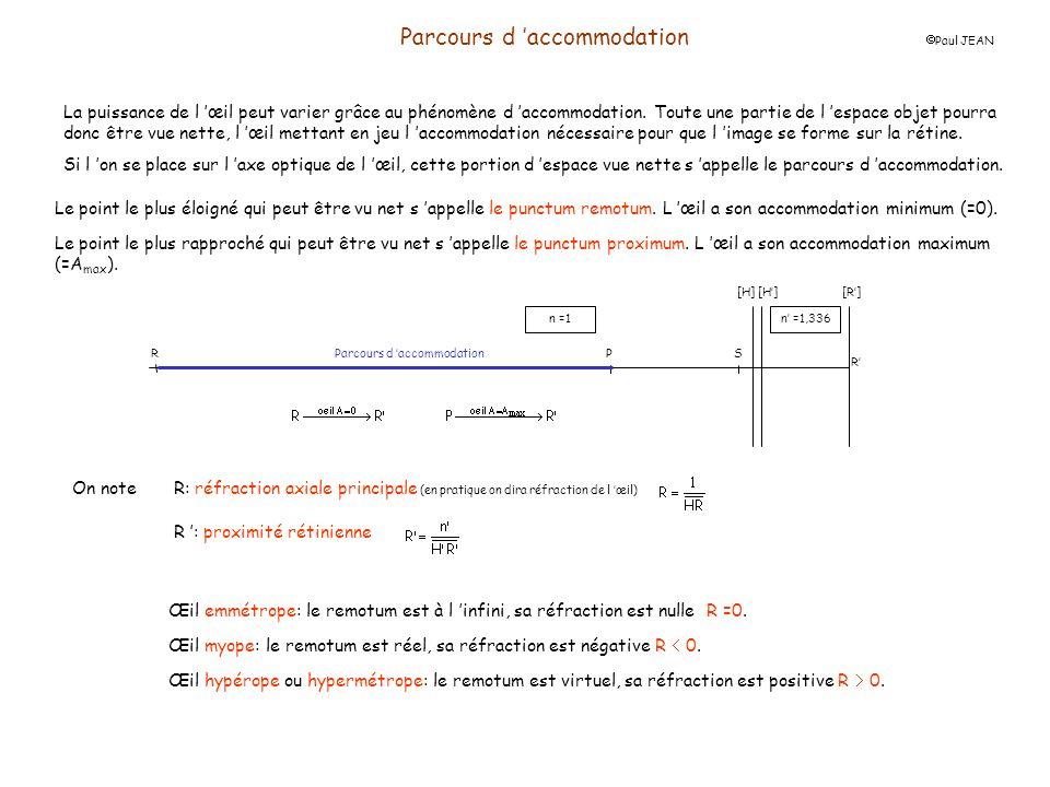 Parcours d accommodation Paul JEAN Exercice d application n°1: On donne les caractéristiques d un œil: vergence non accommodé D 0 =60, SH = 1,6 mm, SH = 1,9 mm et sa longueur SR=25 mm.