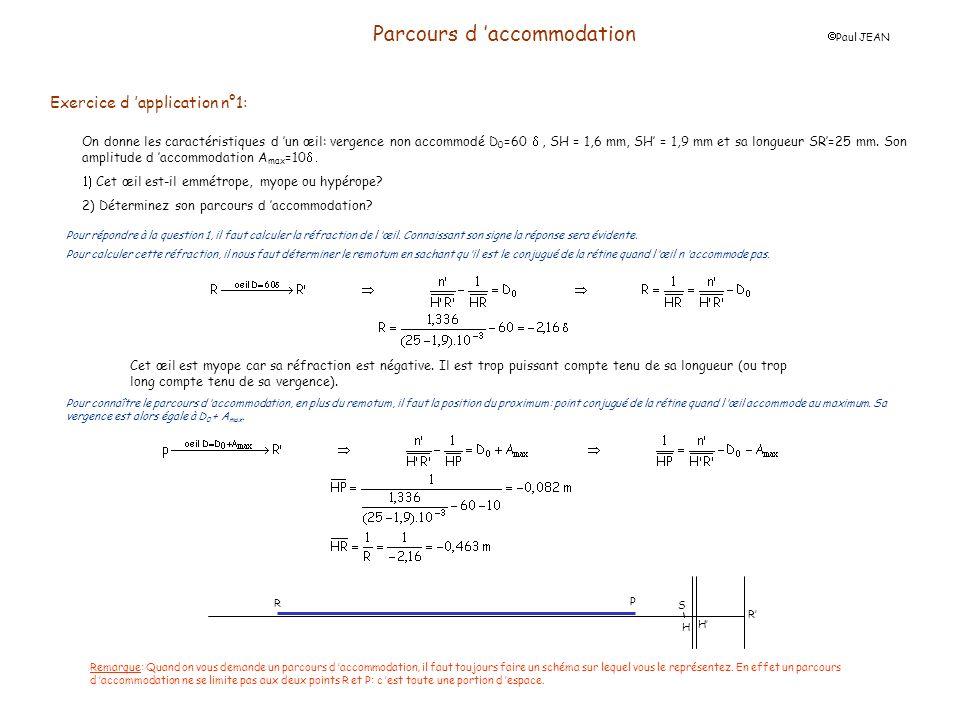 Parcours d accommodation Paul JEAN Exercice d application n°1: On donne les caractéristiques d un œil: vergence non accommodé D 0 =60, SH = 1,6 mm, SH