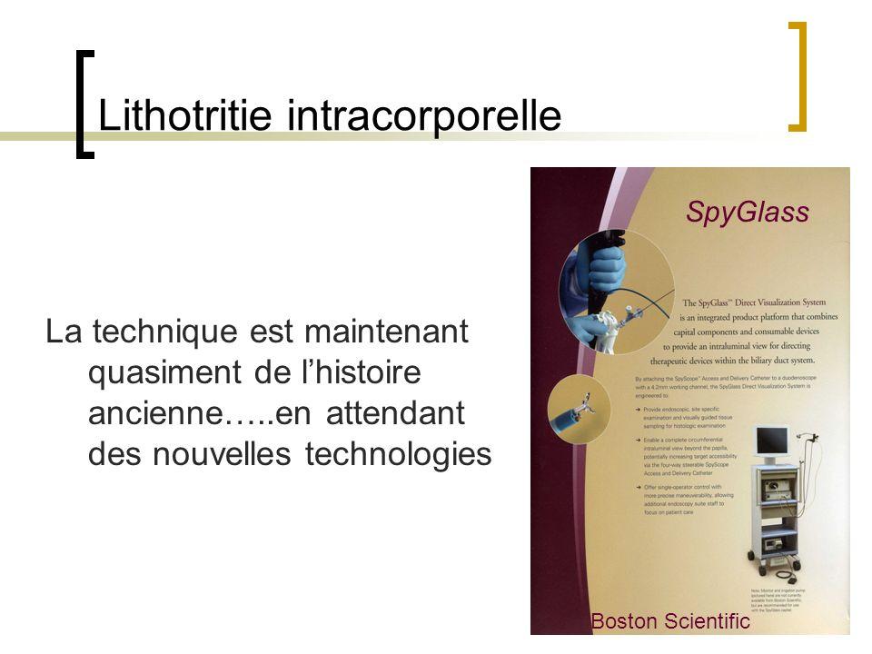 Lithotritie intracorporelle La technique est maintenant quasiment de lhistoire ancienne…..en attendant des nouvelles technologies SpyGlass Boston Scie