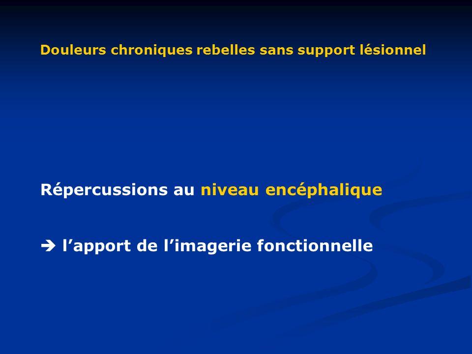 Douleurs chroniques rebelles sans support lésionnel Répercussions au niveau encéphalique lapport de limagerie fonctionnelle