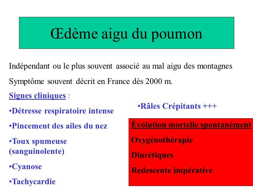 Œdème aigu du poumon Indépendant ou le plus souvent associé au mal aigu des montagnes Symptôme souvent décrit en France dès 2000 m. Signes cliniques :