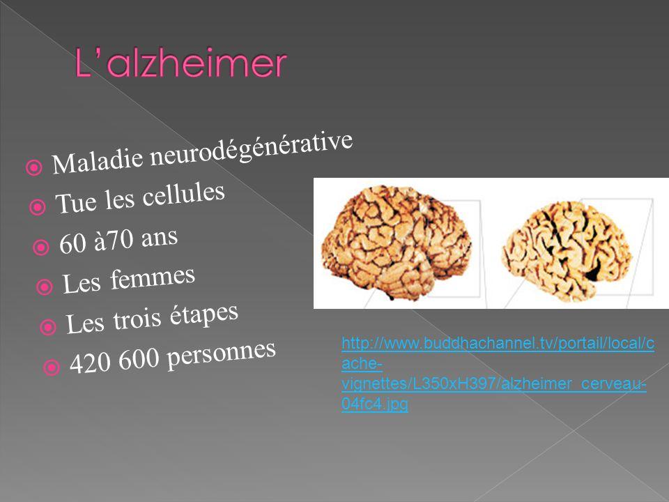 Maladie neurodégénérative Tue les cellules 60 à70 ans Les femmes Les trois étapes 420 600 personnes http://www.buddhachannel.tv/portail/local/c ache-