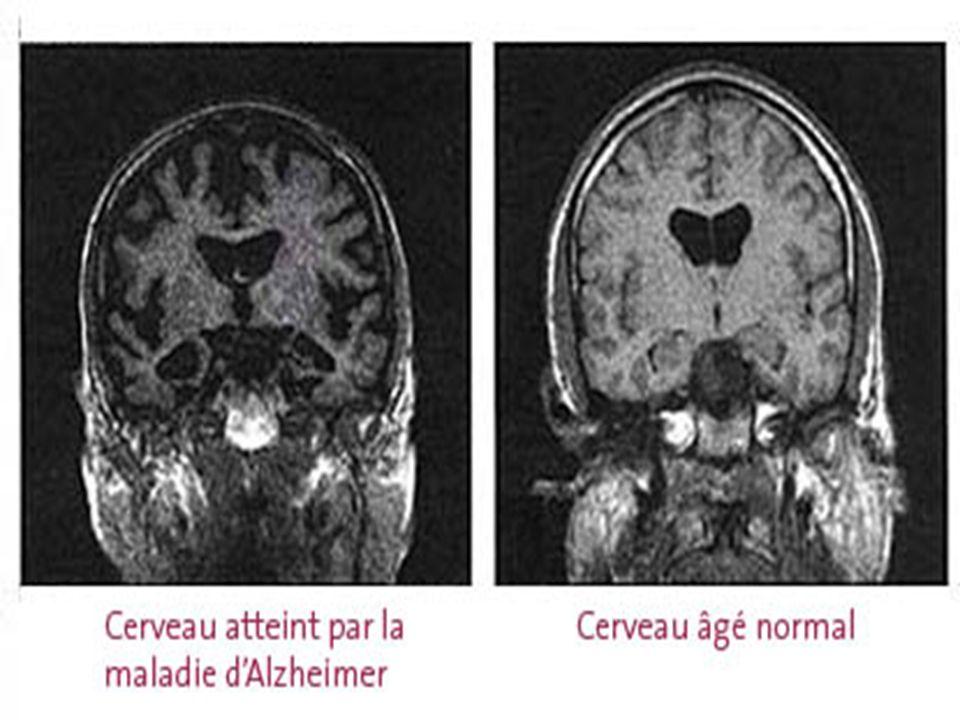 Début: attaque les neurones Fin : 90% du système lubrique http://www.alzheimer.ca/french/alzheimer_brain_mini_site/13.htm Milieu: perde ses neurones et autre zone