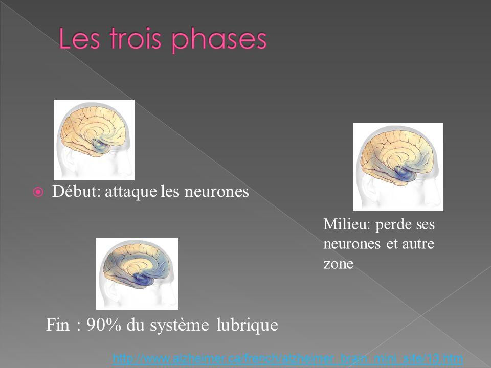 Début: attaque les neurones Fin : 90% du système lubrique http://www.alzheimer.ca/french/alzheimer_brain_mini_site/13.htm Milieu: perde ses neurones e
