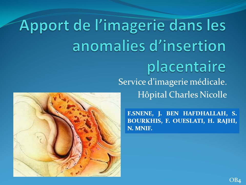 Service dimagerie médicale. Hôpital Charles Nicolle F.SNENE, J. BEN HAFDHALLAH, S. BOURKHIS, F. OUESLATI, H. RAJHI, N. MNIF. OB4