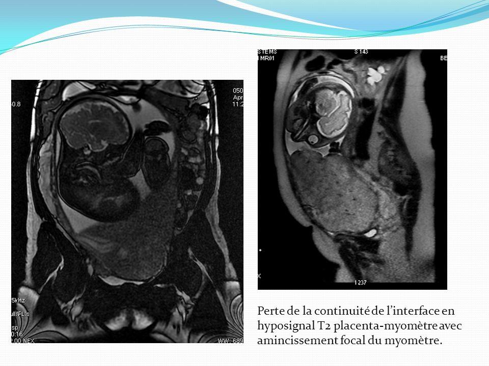 Perte de la continuité de linterface en hyposignal T2 placenta-myomètre avec amincissement focal du myomètre.