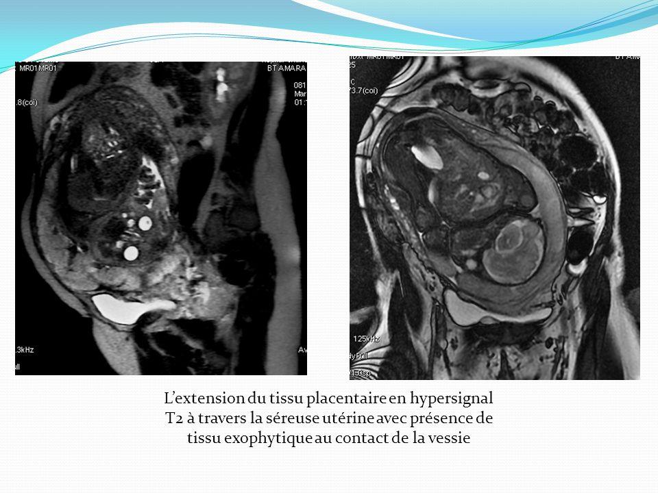Lextension du tissu placentaire en hypersignal T2 à travers la séreuse utérine avec présence de tissu exophytique au contact de la vessie