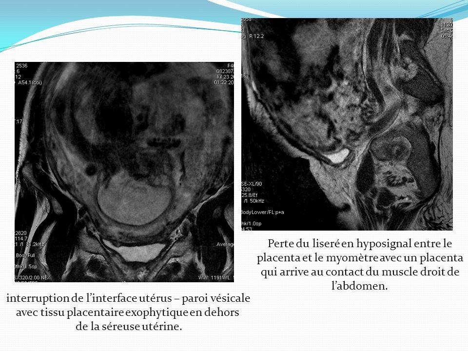 Perte du liseré en hyposignal entre le placenta et le myomètre avec un placenta qui arrive au contact du muscle droit de labdomen. interruption de lin