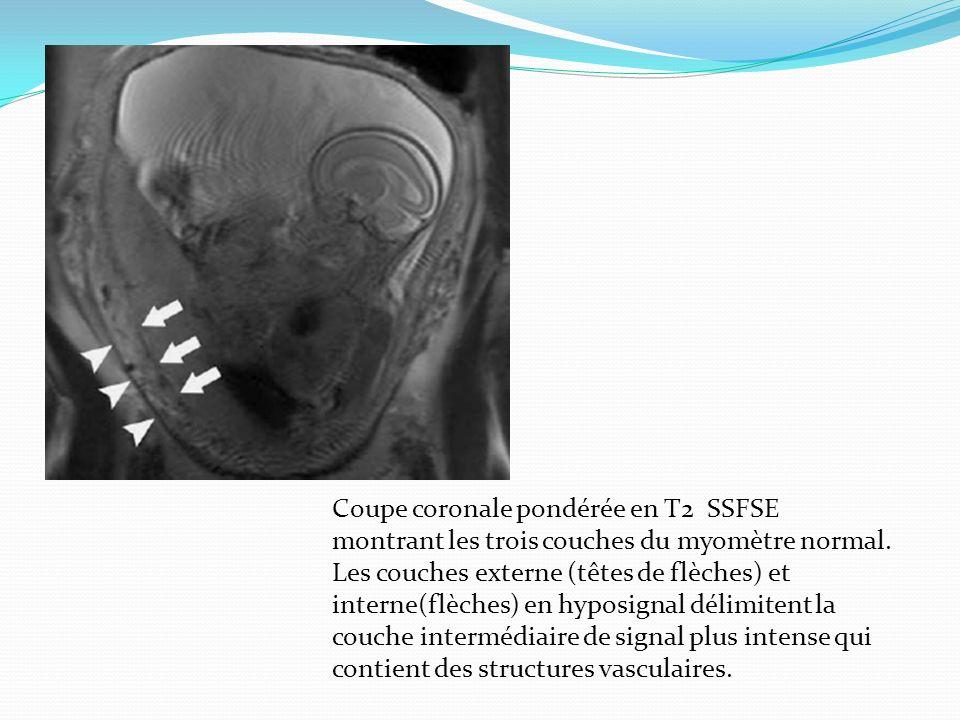 Coupe coronale pondérée en T2 SSFSE montrant les trois couches du myomètre normal. Les couches externe (têtes de flèches) et interne(flèches) en hypos
