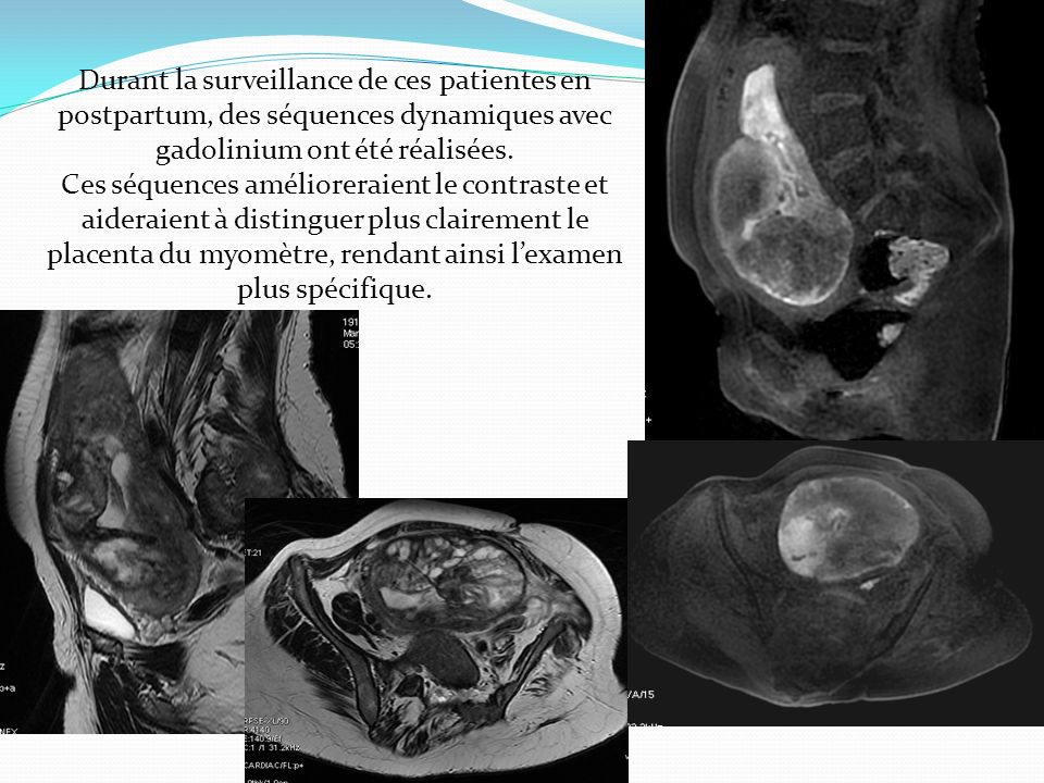 Durant la surveillance de ces patientes en postpartum, des séquences dynamiques avec gadolinium ont été réalisées. Ces séquences amélioreraient le con