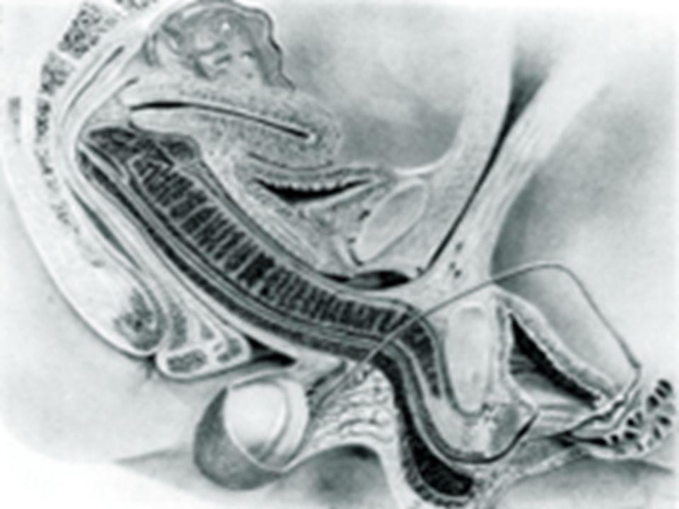 NUVARING* Anneau vaginal hebdomadaire Membrane semi-perméable Effet prolongé Ninterfère pas sur la vie sexuelle Mêmes contrindications que la pilule