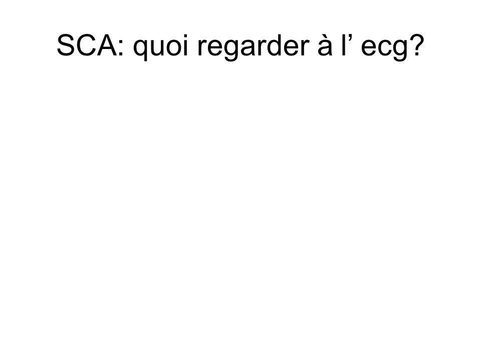 SCA: quoi regarder à l ecg?