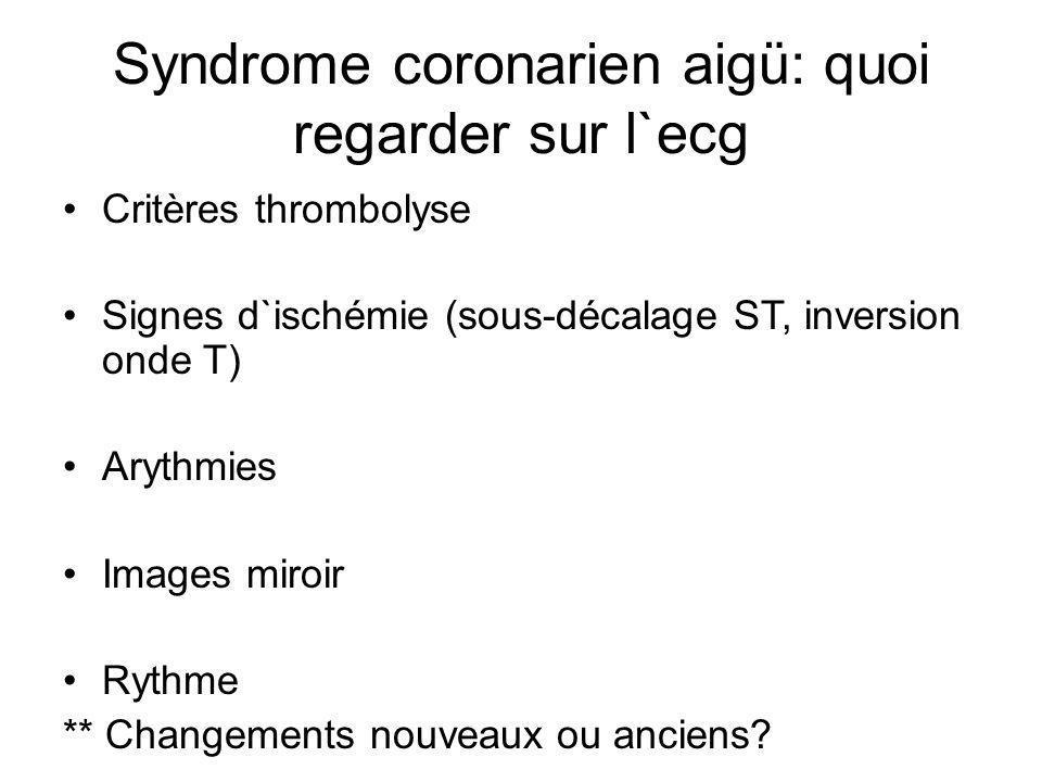 Syndrome coronarien aigü: quoi regarder sur l`ecg Critères thrombolyse Signes d`ischémie (sous-décalage ST, inversion onde T) Arythmies Images miroir Rythme ** Changements nouveaux ou anciens?