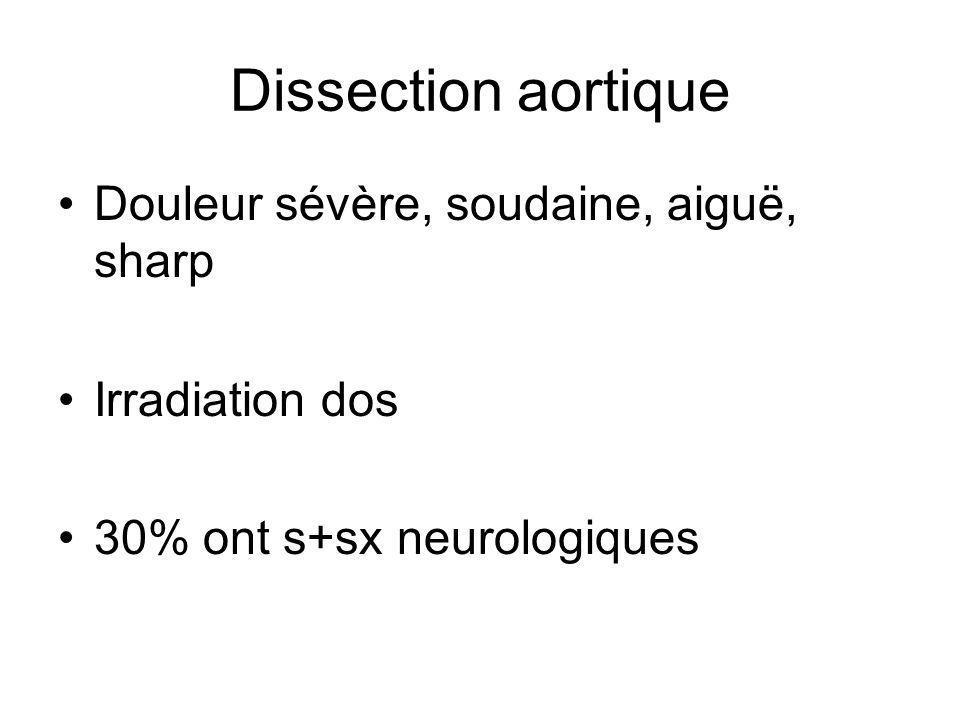 Dissection aortique Douleur sévère, soudaine, aiguë, sharp Irradiation dos 30% ont s+sx neurologiques