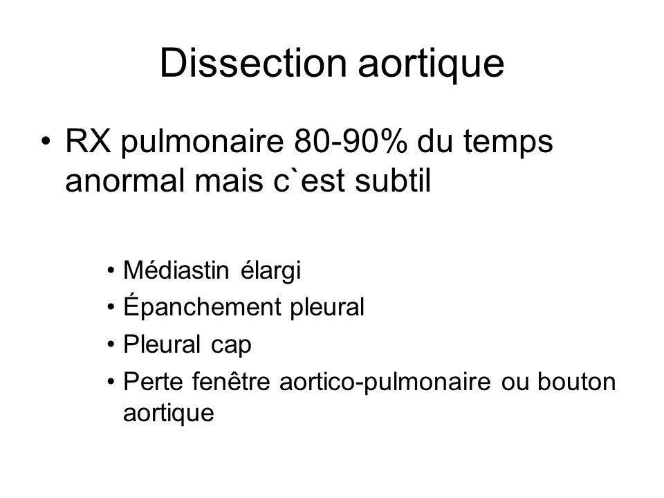 Dissection aortique RX pulmonaire 80-90% du temps anormal mais c`est subtil Médiastin élargi Épanchement pleural Pleural cap Perte fenêtre aortico-pulmonaire ou bouton aortique