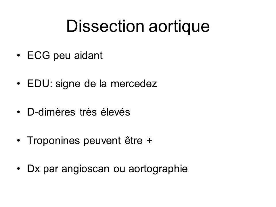 Dissection aortique ECG peu aidant EDU: signe de la mercedez D-dimères très élevés Troponines peuvent être + Dx par angioscan ou aortographie