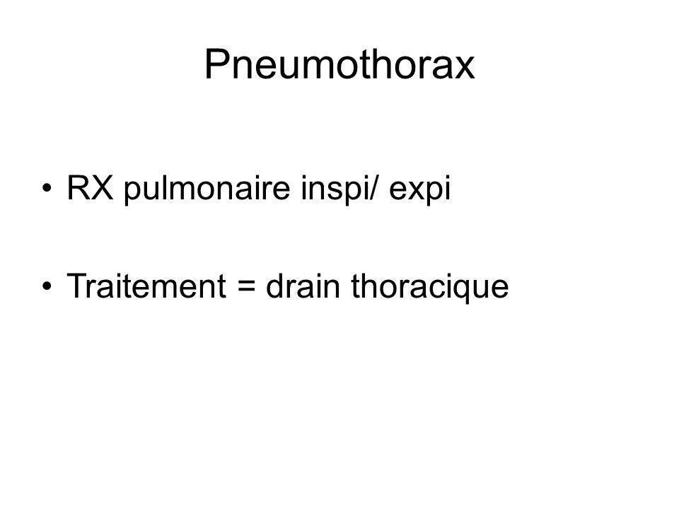 Pneumothorax RX pulmonaire inspi/ expi Traitement = drain thoracique