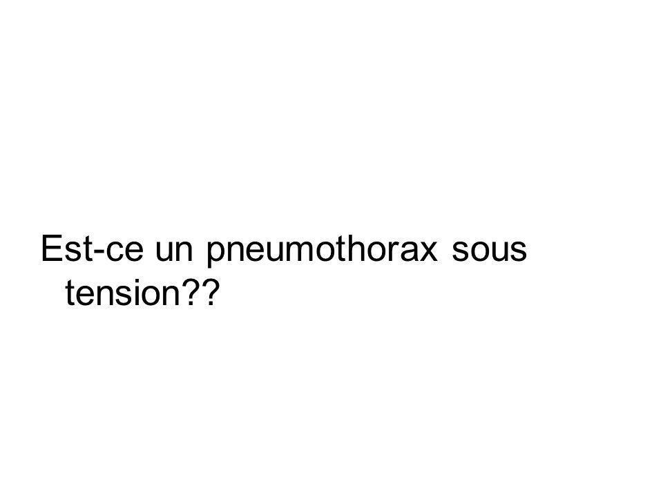 Est-ce un pneumothorax sous tension??