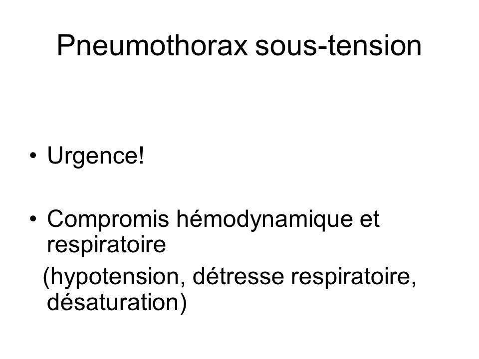 Pneumothorax sous-tension Urgence.