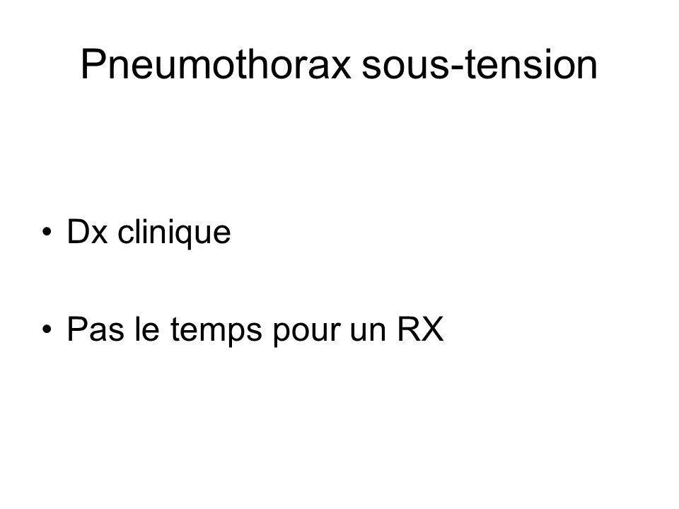 Pneumothorax sous-tension Dx clinique Pas le temps pour un RX