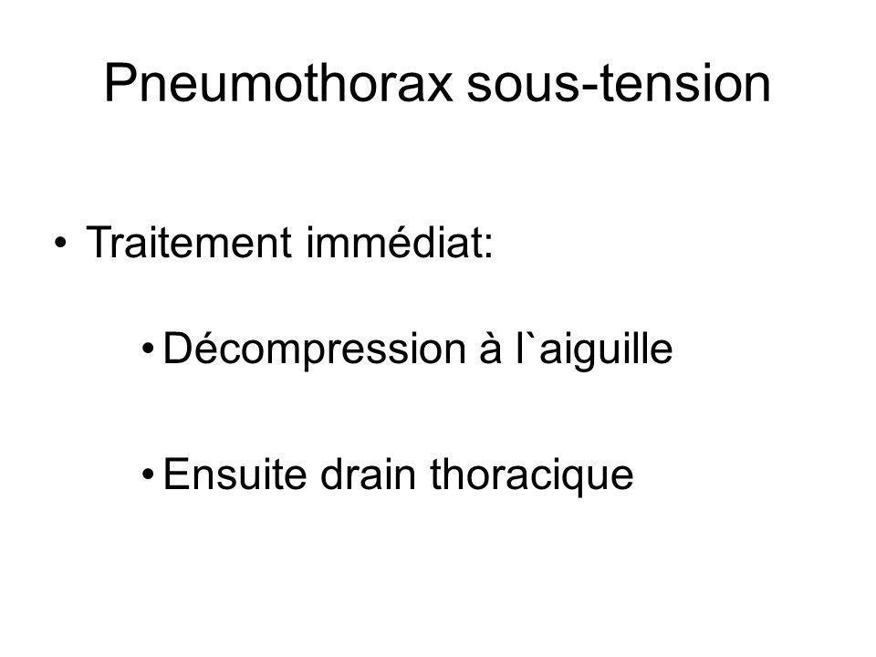 Pneumothorax sous-tension Traitement immédiat: Décompression à l`aiguille Ensuite drain thoracique