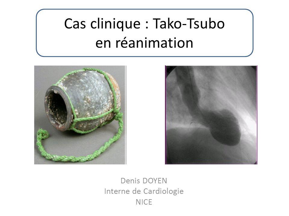 Denis DOYEN Interne de Cardiologie NICE Cas clinique : Tako-Tsubo en réanimation