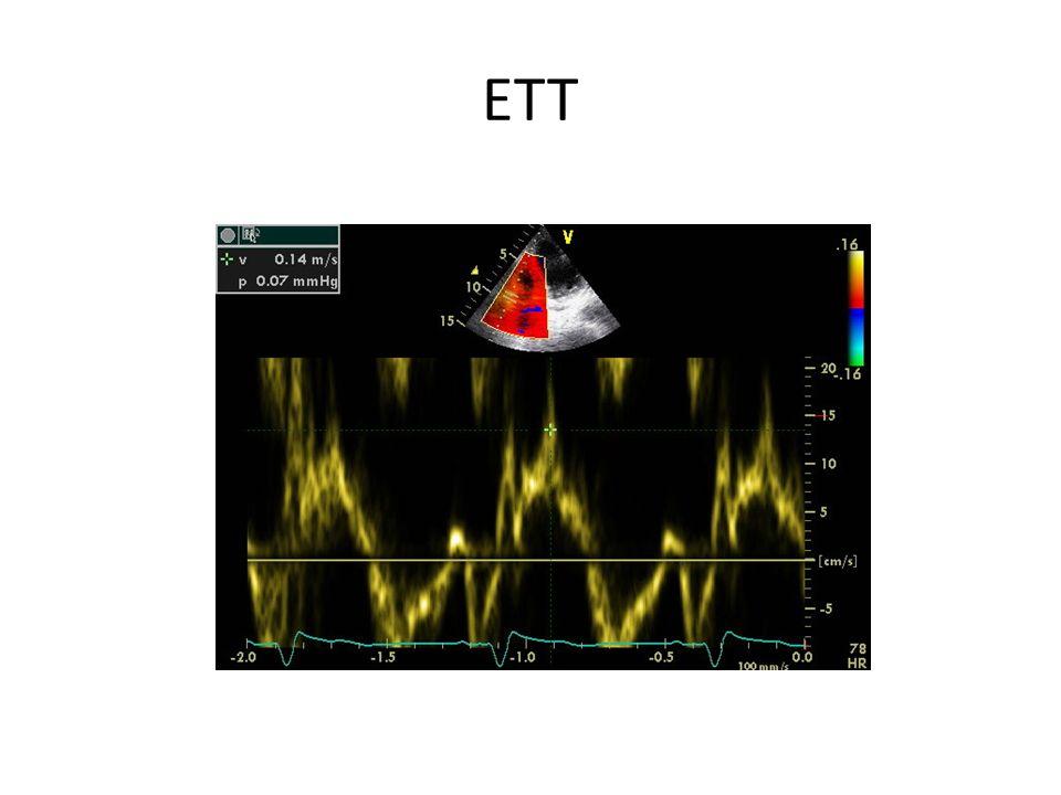 ECG initial