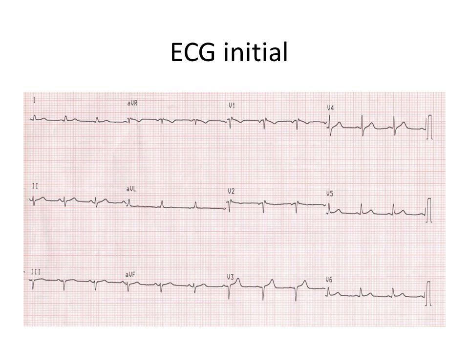 ECG H6