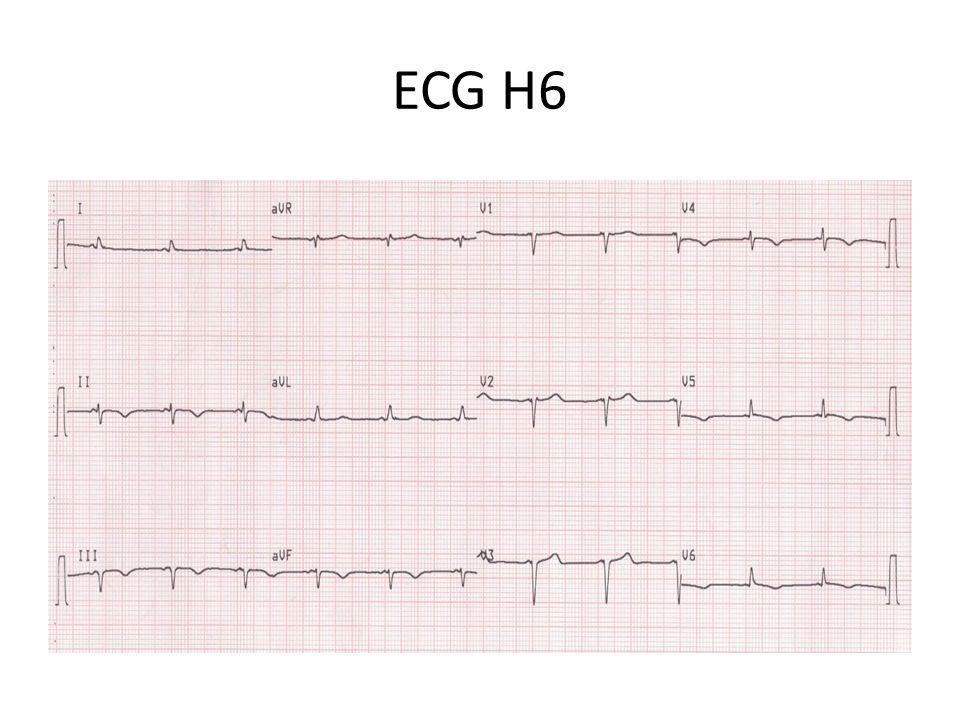 ECG H12