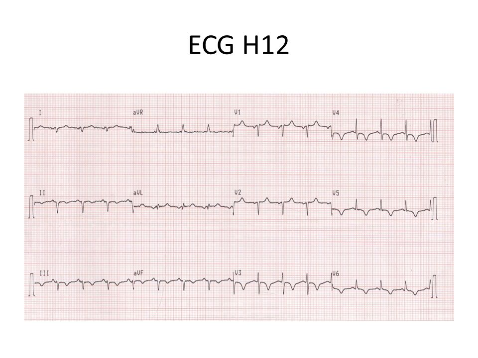 ECG H18