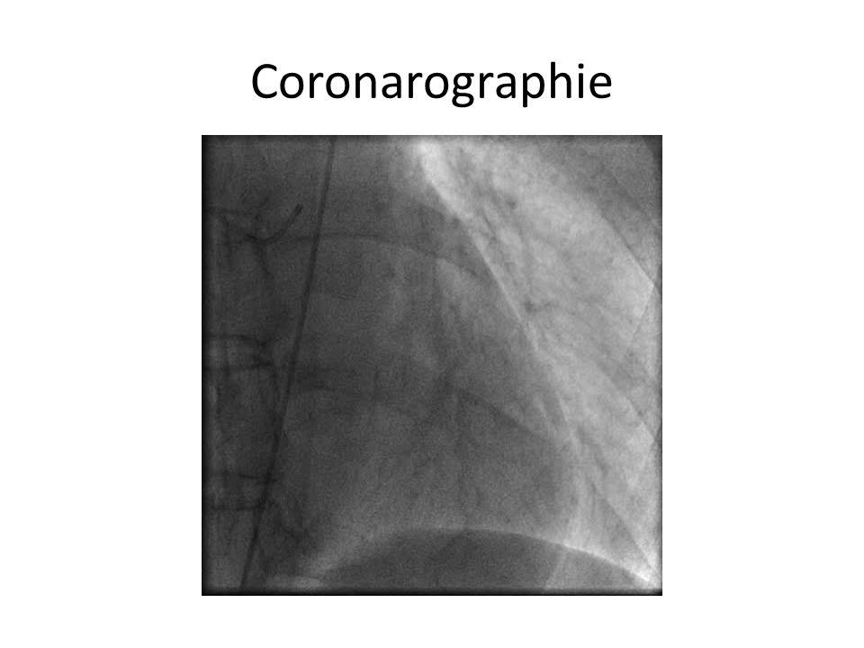 Coronarographie
