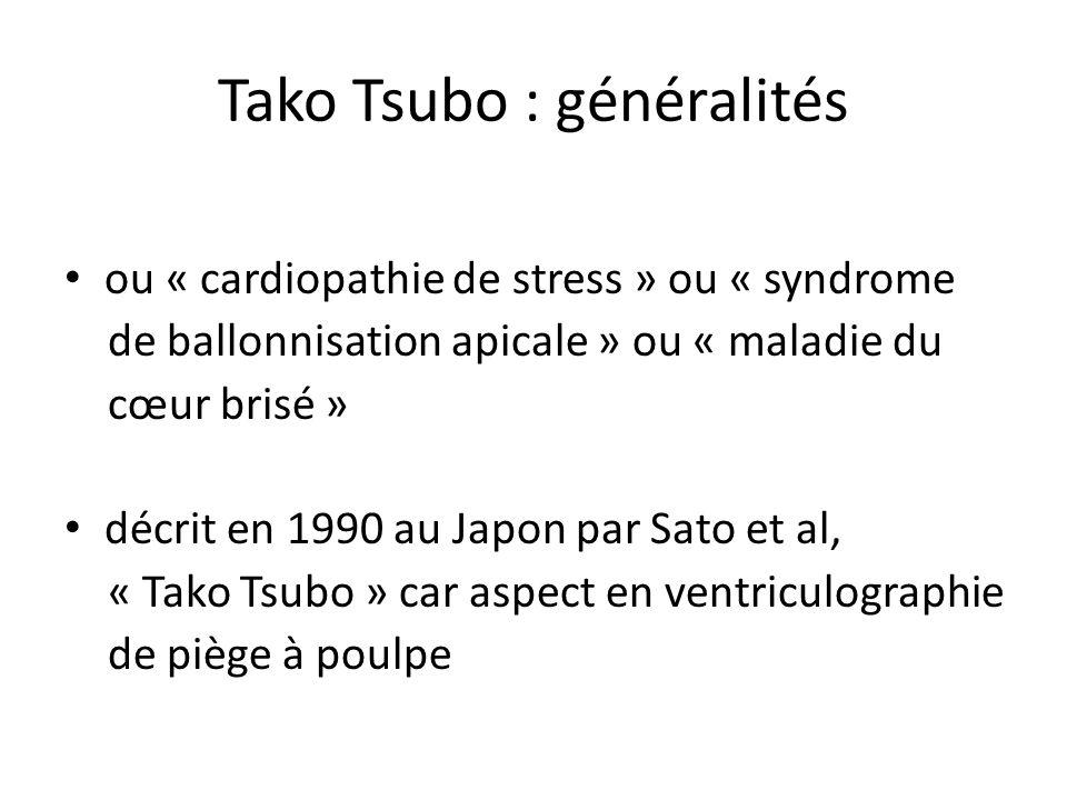 Tako Tsubo : généralités ou « cardiopathie de stress » ou « syndrome de ballonnisation apicale » ou « maladie du cœur brisé » décrit en 1990 au Japon