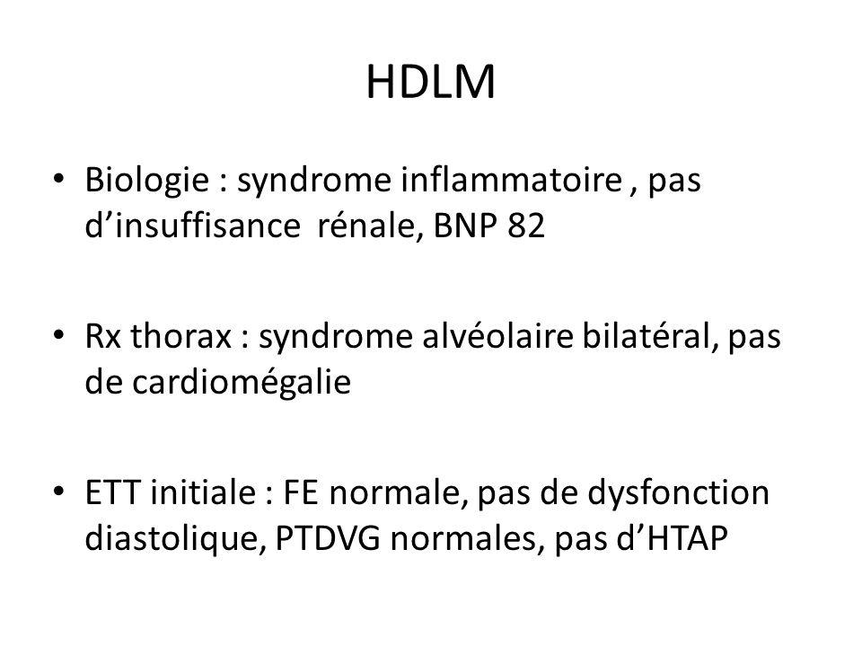 HDLM Biologie : syndrome inflammatoire, pas dinsuffisance rénale, BNP 82 Rx thorax : syndrome alvéolaire bilatéral, pas de cardiomégalie ETT initiale