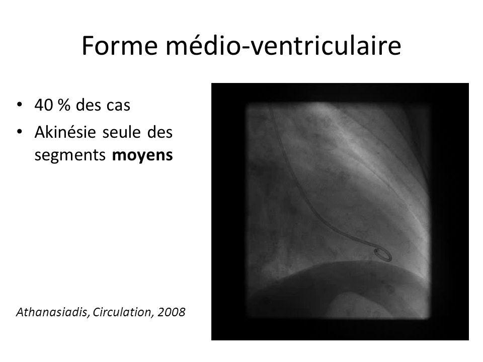 Forme médio-ventriculaire 40 % des cas Akinésie seule des segments moyens Athanasiadis, Circulation, 2008
