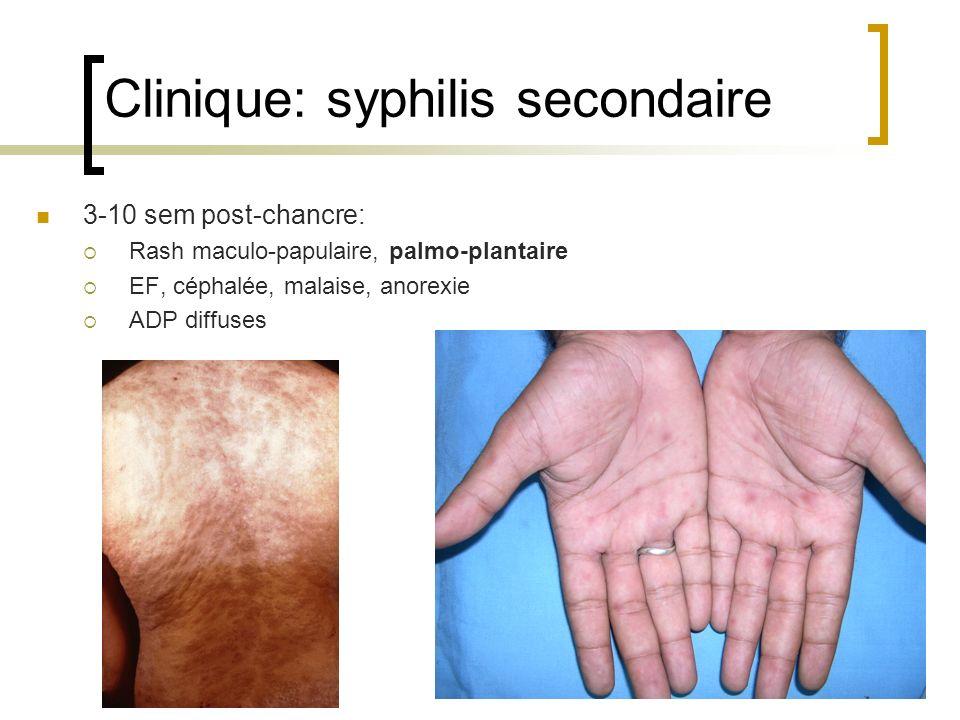 Clinique: syphilis secondaire 3-10 sem post-chancre: Rash maculo-papulaire, palmo-plantaire EF, céphalée, malaise, anorexie ADP diffuses