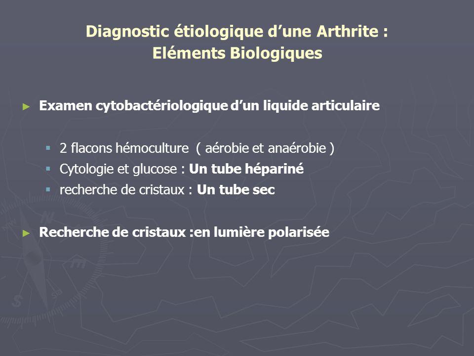 Diagnostic étiologique dune Arthrite : Eléments Biologiques Examen cytobactériologique dun liquide articulaire 2 flacons hémoculture ( aérobie et anaé