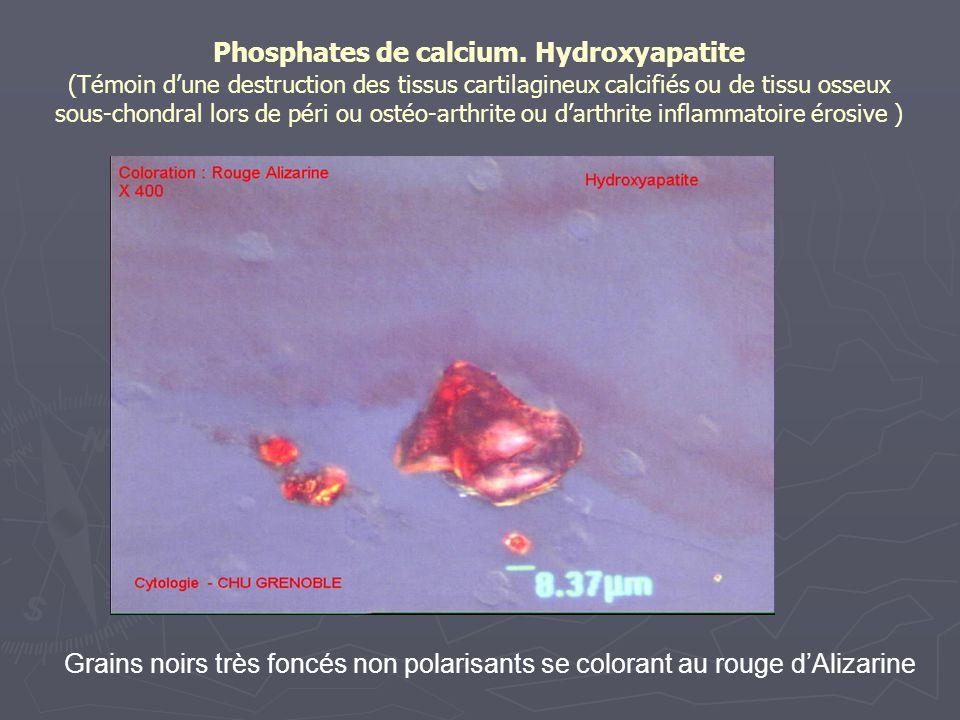 Phosphates de calcium. Hydroxyapatite (Témoin dune destruction des tissus cartilagineux calcifiés ou de tissu osseux sous-chondral lors de péri ou ost