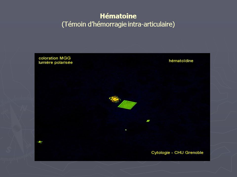 Hématoine (Témoin dhémorragie intra-articulaire)