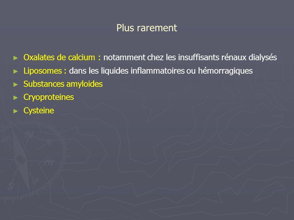 Plus rarement Oxalates de calcium : notamment chez les insuffisants rénaux dialysés Liposomes : dans les liquides inflammatoires ou hémorragiques Subs