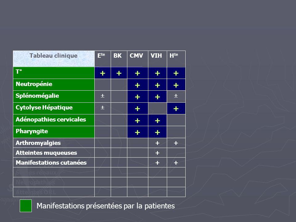 Neuropathies Signes rénaux Atteintes ORL + + + + + H te + + + + + + CMV + + + + + + + + VIH + BKE te Tableau clinique + Manifestations cutanées Attein