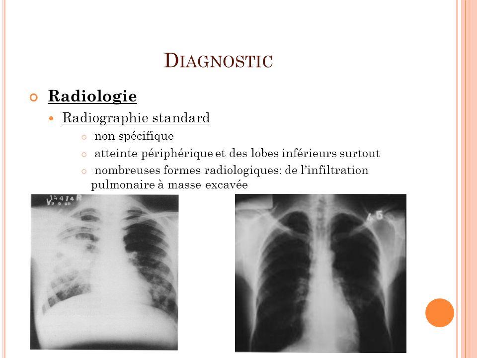 D IAGNOSTIC Radiologie Radiographie standard non spécifique atteinte périphérique et des lobes inférieurs surtout nombreuses formes radiologiques: de