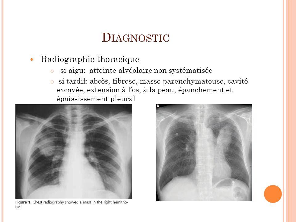 D IAGNOSTIC Radiographie thoracique si aigu: atteinte alvéolaire non systématisée si tardif: abcès, fibrose, masse parenchymateuse, cavité excavée, ex