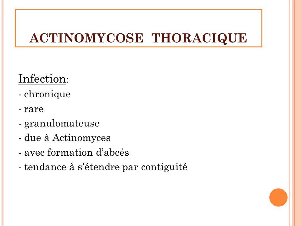 ACTINOMYCOSE THORACIQUE Infection : - chronique - rare - granulomateuse - due à Actinomyces - avec formation dabcés - tendance à sétendre par contigui
