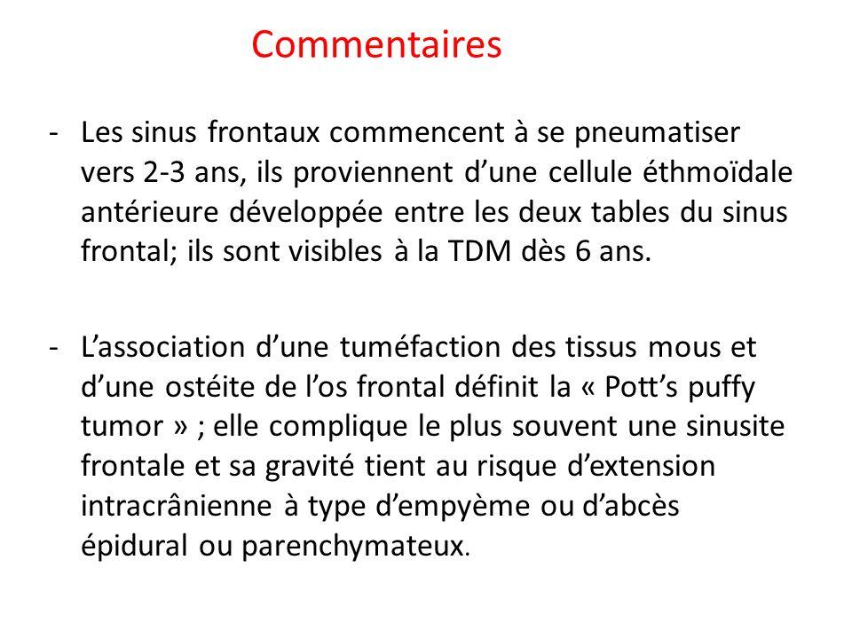 Commentaires -Les sinus frontaux commencent à se pneumatiser vers 2-3 ans, ils proviennent dune cellule éthmoïdale antérieure développée entre les deu