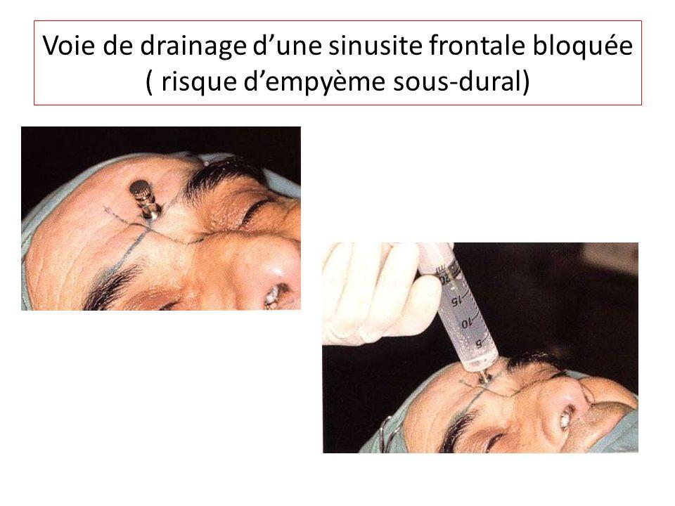 Voie de drainage dune sinusite frontale bloquée ( risque dempyème sous-dural)